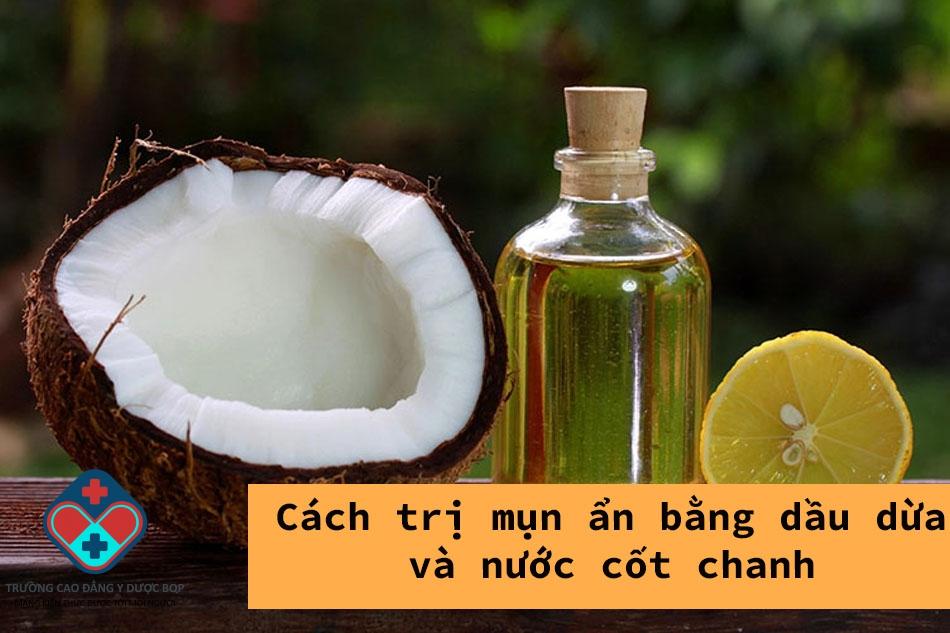 Cách trị mụn ẩn bằng dầu dừa và nước cốt chanh